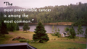 The most preventable cancer is among the most common